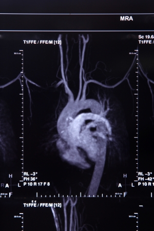 Image of CT scan art�re coronaire et le syst�me de circulation de coeur