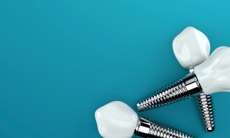 Dental implants on blue background Archivio Fotografico