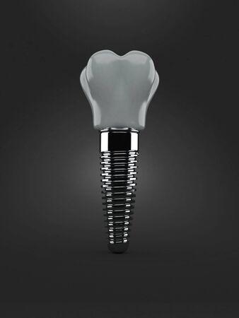 灰色の背景で隔離される歯科インプラント