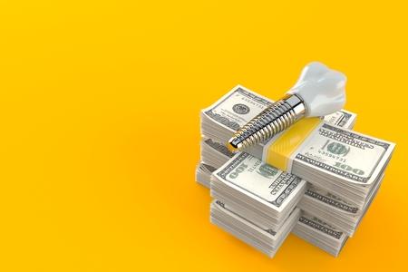 Dental implant on stack of money isolated on orange background. 3d illustration Stock Photo