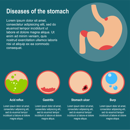 Damage to the stomach. Poster about common diseases of the stomach. Burp, heartburn, gastritis and stomach ulcers. Flat design