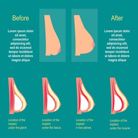breast implant: The methods of installation of the implants in the chest. The result of plastic surgery. Vector illustration. Flat design