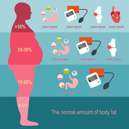The progression of obesity. Infographics. Body fat percentage from low to high. Diseases from obesity. Flat design. Illustration