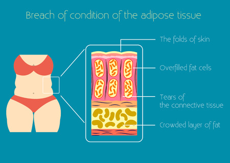 excess: Obesity illustration The structure of adipose tissue by excess body weight and obesity Infographics