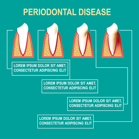 periodontal disease: Periodontal disease illustration Medical poster about the stages of development of periodontal disease