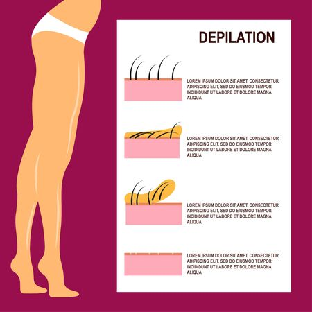 waxing: Depilation Vector illustration Slender female legs after waxing Scheme of the process of depilation