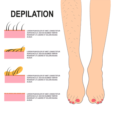 waxing: Depilation Vector illustration Female legs before and after waxing Scheme of the process of depilation