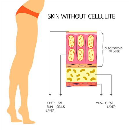 adipose tissue: Cellulitis Vector illustration The structure of the adipose tissue with normal body weight and no cellulite Infographics