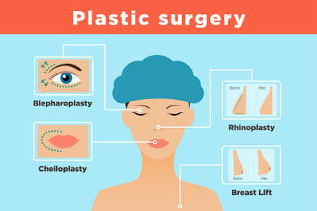 Infographics with female portrait and different types of plastic surgery Иллюстрация