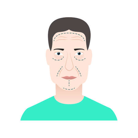 Plastic surgery markers on face Vector illustration in flat style