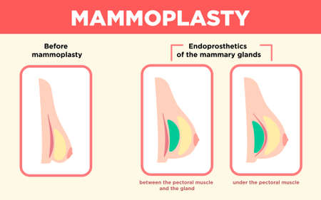 Mammoplasty Vector medicine poster in flat design