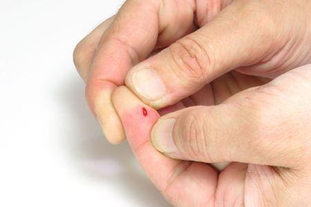 Dedo pulgar de un corte y sangriento dedo en brillantes antecedentes.  Foto de archivo - 2600045