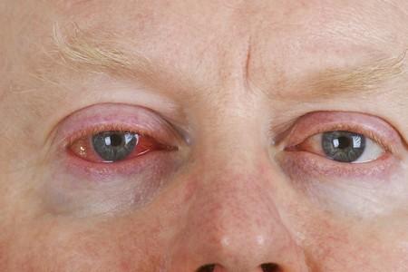 Close up shot from  mans wrinkled tired irritated bloodshot eye.