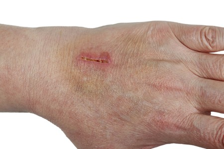 Painful laceration in detail. Imagens