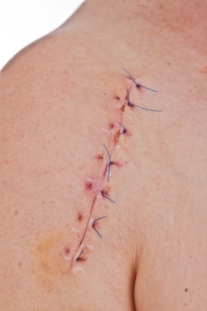 flesh surgery: Close-up picture of a scar on a female shoulder with stitch   Stock Photo