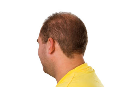hair problem: Young man with hair problem - isolated on white background Stock Photo