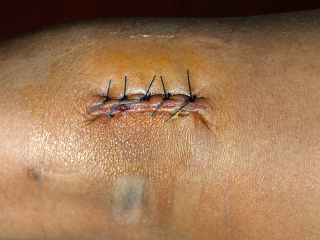 incision: Suture after elbow surgery, 5 needle, black Nylon (USS Sutures )