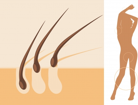 armpits: Epilation Illustration