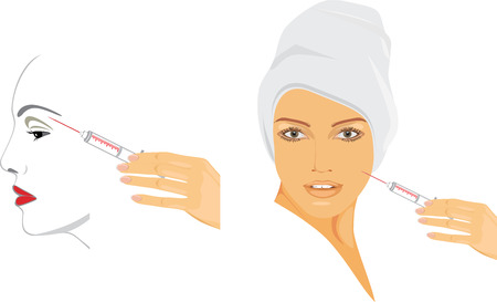 Cosmetic injection of hyaluronic acid Stock Vector - 24643731
