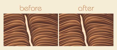 dandruff: Dandruff hair problem