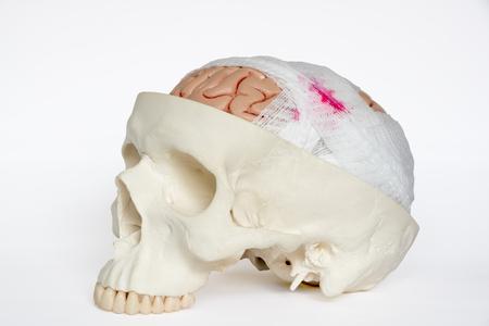 흰색 배경에 뇌 손상을 시연하는 뇌 모델을 둘러싼 과체 포장 스톡 콘텐츠