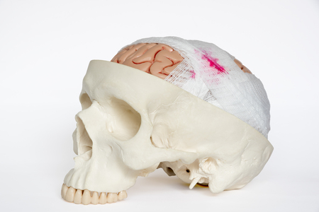 Guaze wrapping around brain model demonstring brain injury on the white background Stockfoto