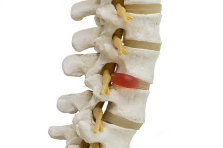 Human lambar spine model demonstating herniated disc pressure to nerve root , pressure causing back pain