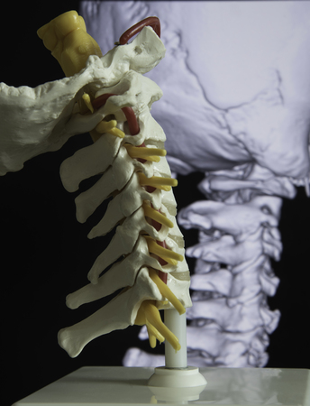 Human Cervical Spine Model And Picture Of Three Dimensional MRI ...