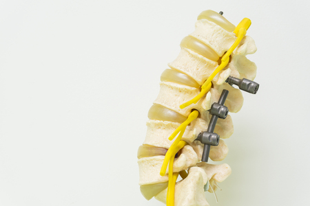 Human lumbar spine model with instrument fixation 스톡 콘텐츠