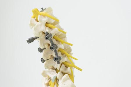 Human lumbar spine model with instrument fixation Reklamní fotografie