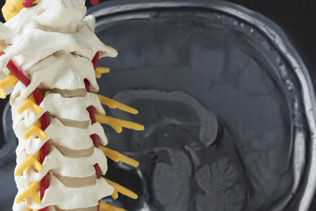 Artificial human cervical spine model and brain MRI picture