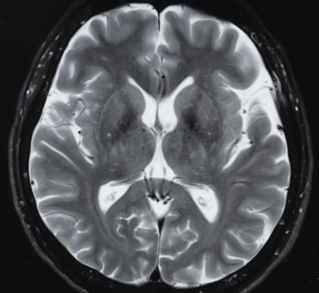 Magnetic resonance imaging in T2 study of normal human brain anatomy