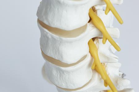 Nahaufnahme der Nervenwurzel, die aus dem Foramen intervertebrale des Modells der Lendenwirbelsäule austritt