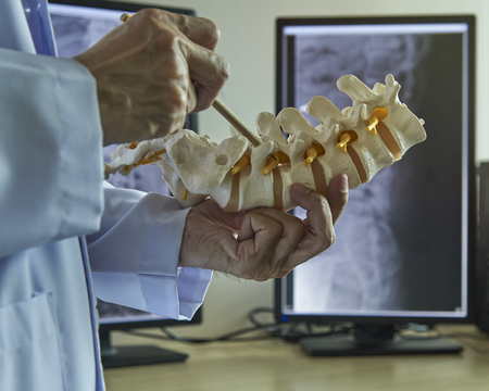 A neurosurgeon using pencil pointing at nerve root of lumbar vertebra model in medical office. Lumbar spine x-ray in computer display on background.