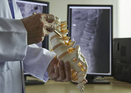 A neurosurgeon using pencil pointing at lumbar vertebra model in medical office. Lumbar spine x-ray on computer screen on background. 스톡 콘텐츠