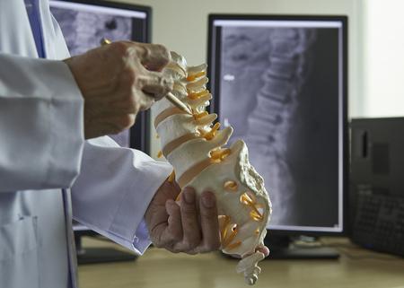 Un neurocirujano con lápiz apuntando al modelo de vértebra lumbar en el consultorio médico. Radiografía de la columna lumbar en la pantalla del ordenador en el fondo. Foto de archivo