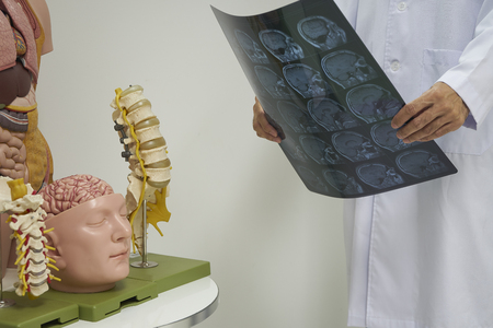 A neurosurgeon holding MRI brain in medical office. Background of human body, cervical, lumbar spine and brain model.