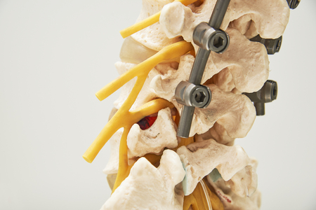 Close-up side view, model of instrument fixation of human lumbar spine model