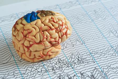 Modelo de cerebro humano artificial sobre papel de fondo de ondas EEG