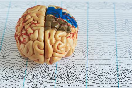 Modelo de cerebro humano sobre fondo de ondas cerebrales de electroencefalografía Foto de archivo