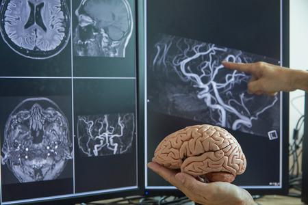 Human brain model on doctor hand. Neurologist demonstrating brain MRI on computer monitor.