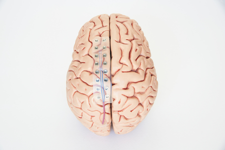Subdural grid electrode for brain waves recording or electroencephalography on the artificial brain model cortex