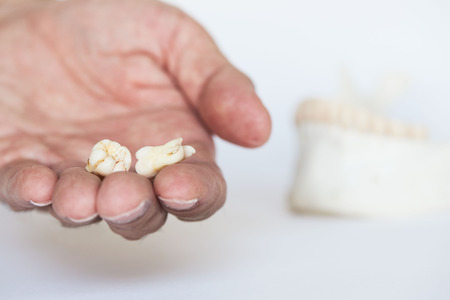 Two extracted wisdom teeth on dentist palm. Human mandible and teeth on background