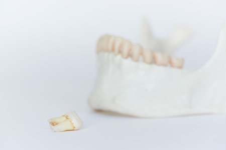 An extracted wisdom molar tooth on human jaw model