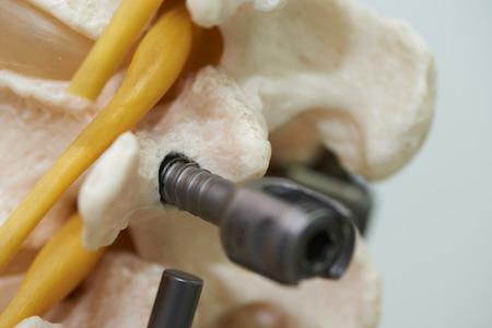 Vista cercana del modelo de columna lumbar humana y fijación de instrumentación con varilla y tornillo