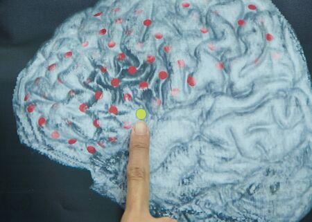 Index finger pointing at imaging of human brain anatomy and electrodes on brain surface