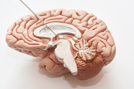 Miicroelectrode recording on the brain model. Concept of brain recording in subthalamic nucleus for Parkinson disease surgery.