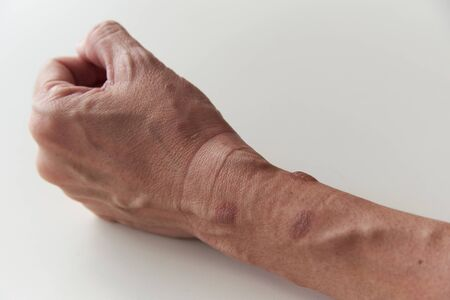 Second degree burn with blisters at woman left forearm and wrist on white background Imagens - 134797473
