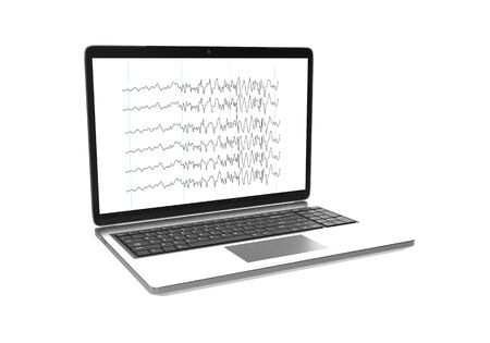 A laptop with screen display of epileptic seizure electroencephalograhy isolated on white background. 3D rendering. Imagens