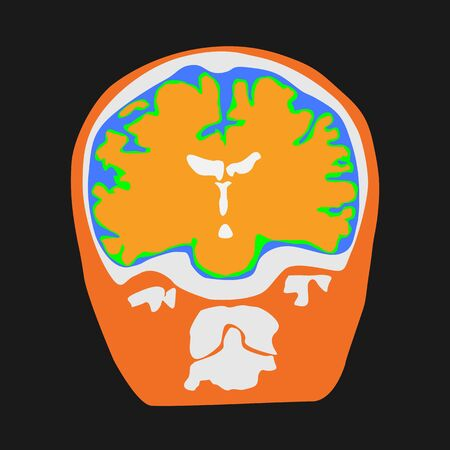 Front view of human brain illustration on the black background.  Ilustração